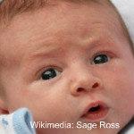 Newborn-rash